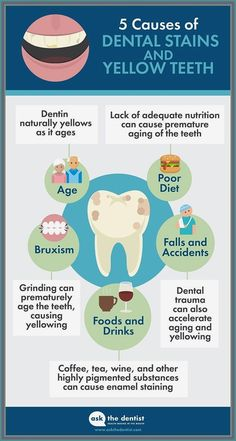 Teeth Whitening Methods, Natural Teeth Whitening, Dental Health, Dental Care, Oral Health, Dental Kids, Gum Health, Teeth Health, Health Tips