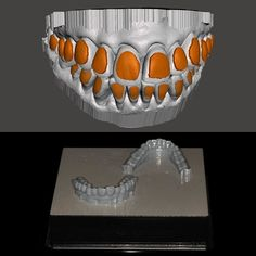 Making bleaching trays is quite simple using CAD modeling software like SketchUp Blender or Meshmixer! But the key is having a printer that prints really clean. Anyone try printing dental models?  #formlabs #3m #prosthodontics #dental3d #dentalce #implantsurgery #prostho #dentalcourses #3Dprinting #3ddentistry #implants by dental3dgeek