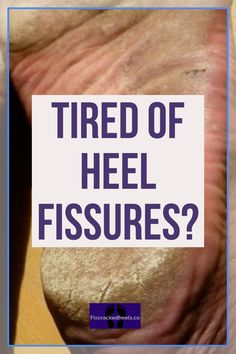 cracked skin on heels What are heel fissures. Find out how I won my battle with cracked heels in a few easy steps. Heal Cracked Heels, Cracked Skin, Heel Fissures, Sore Feet, Thick Skin, Home Treatment, Hand Care, Feet Care, Things That Bounce