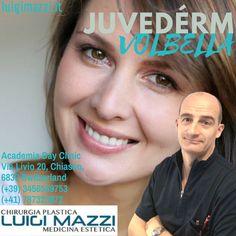╚ Dr. Luigi Mazzi ╝  » Juvedérm VOLBELLA - Chirurgia Plastica ed Medicina Estetica Verona e Chiasso  Dove può intervenire JUVEDÉRM VOLBELLA  Visita: http://luigimazzi.it/juvederm-volbella/ ♦♦♦ @luigi.mazzi.chirurgiaplastica  #luigimazzi #mazzi #antiaging #medicinaestetica #verona #aestheticmedicine #aesthetic #beauty #bellezza #hyaluronicacid #antieta #acidoialuronico #filler #dermico #dermalfiller #dermal #filler #wrinkles #rughe #skin #pelle #face #viso #lips #labbra #juvederm #volbella…