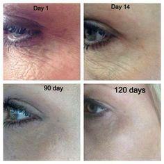 Give us 1 year and we will take off ten years! Amazing results!  30day money back guarantee!! What do you have to lose? $80 to preferred customers jlavoie.nerium.com  repin this to share with your friends