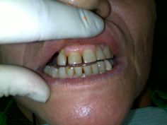 Before treatment upper and lower, front teeth