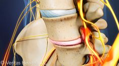 The spine, hip bones, and nerves.  The degenerating disc is causing pain.