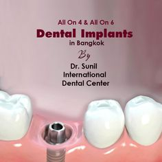 The Battle Over Tooth Implant and How to Win It - Oral Health Care Dental Implant Procedure, Teeth Implants, Dental Implants, Dental Surgery, Dental Hygienist, Tooth Extraction Aftercare, Tooth Extraction Healing, Dental Bridge Cost, Teeth Whitening That Works