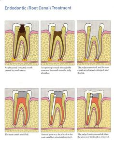 The tooth itself is not capable to heal by its own, thus root canal therapy is required to stop further infection and weakening of neighboring teeth.