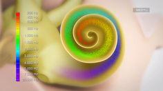 Cómo Funciona la Audición: conozca el proceso de audición y cómo funciona | MED-EL