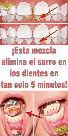 ¡Esta mezcla elimina el sarro en los dientes en tan solo 5 minutos! Home Remedies, Natural Remedies, Beauty Care, Beauty Hacks, Tan Solo, White Teeth, Body Treatments, Natural Medicine, Healthy Tips
