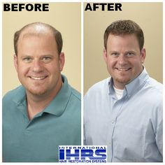 Jason saw amazing results with the help of Sensigraft™ Hair Restoration from IHRS! Visit http://www.hair4me.com/index.htm to see how we can help you. #hairloss #hairrestoration #bald #balding #IHRS #internationalhairrestorationsystems