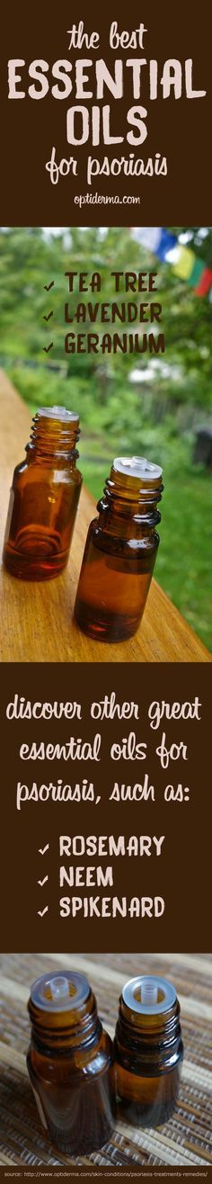 What are the Best Essential Oils for Psoriasis & Scalp Psoriasis? Learn about essential oils and how to use them to soothe the symptoms of psoriasis. Tea tree, lavender & geranium essential oils are popular ones. What about lesser-known neem and spikenard oils? Source: http://www.optiderma.com/skin-conditions/psoriasis-treatments-remedies/