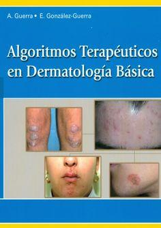 Algoritmos terapeúticos en Dermatología básica http://kmelot.biblioteca.udc.es/record=b1502845~S12*gag