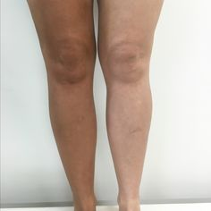 """Thanks to our lovely customer Lisa for sharing your amazing results and feedback with us! """"Loving Tan in Ultra Dark is my go to tan - it gives such a deep, brown colour with no orange tones"""" Best Tanning Lotion, Tanning Tips, Fake Tan, Deep Brown, Beauty Hacks, Beauty Tips, Lisa, Colour, Orange"""