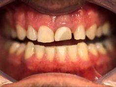 Lentes de Contato Odontológica.