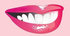 Dragul meu, azi e Valentine's Day! Ne-a invitat? Dental Cosmetics, Stea, Marie, Vector Free, Calendar, Clip Art, Vectors, Smile, Surgery
