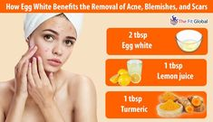 13 amazing egg white benefits egg white masks for skin hair 5 ways to remove blackheads naturally without scarring your face remedies beauty infographic Egg White Facial, Egg Facial, Egg White Mask, White Face Mask, Blackheads On Cheeks, Face Mask For Pimples, Acne Face Mask, Acne Blemishes, Egg White Benefits