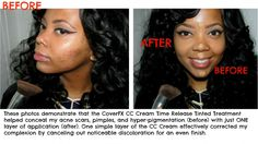 Before & after using #CoverFX CC Cream