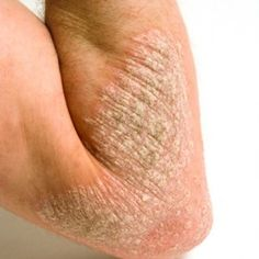 Top 17 Natural Treatments For Psoriasis