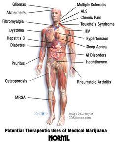 Potential Therapeutic Uses of Medical Marijuana