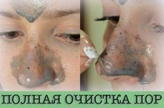 How to get rid of black dots on the chin and on the nose - DIY & TIPS About Life My Beauty, Beauty Care, Beauty Secrets, Health And Beauty, Beauty Hacks, Hair Beauty, Face Care, Body Care, Skin Care
