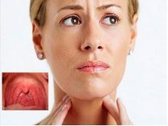 This article deals with sore throat (pharyngitis) causes, treatment and prevention. It is normally a symptom of viral or bacterial infection.