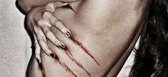 FIBROMIALGIA, El dolor puede resultar de la inflamación neurogénica de nervios periféricos http://fibromialgiadolorinvisible.blogspot.com.ar/2016/03/fibromialgia-el-dolor-puede-resultar-de.html