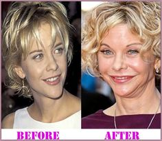 Stars Who Age Badly Plastic Surgery Disasters