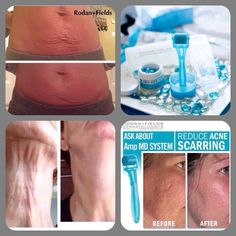 Stretch marks? Turkey neck? Acne scars? Other scars? Wrinkles? Rodan and Fields Amp MD roller with skin renewing serum can help! Get a 10% -20% discount and free shipping! 60 day money back guarantee Contact me to get yours today: ashsin2001@gmail.com Www.asinitiere.myrandf.com