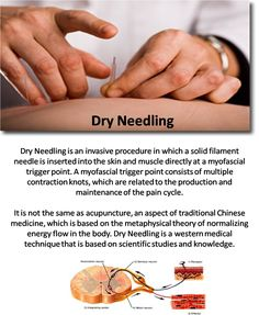 Dry Needling changed my life. Or at least the way I sleep. It's wonderful.