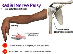 Radial Nerve Palsy And Physiotherapy Treatment : Hand Therapy, Massage Therapy, Physical Therapy, Occupational Therapy, Medicine Notes, Emergency Medicine, Sports Medicine, Human Body Anatomy, Human Anatomy And Physiology