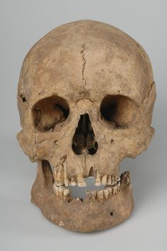 https://flic.kr/p/btBsX2 | Cranium, male | Cranium, male. In the upper jaw, horizontally filed furrows on the upper frontal part of the teeth crowns show that deliberate dental modifications were made. Grave find, Slite, Othem, Gotland, Sweden.  SHM 23248  See also kulturarvsdata.se/shm/object/html/222653