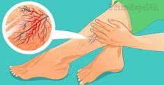 Varicose Vein Removal, Varicose Veins, Advantages Of Coconut Oil, How To Relieve Heartburn, Increase Hair Growth, Knee Stretches, Improve Metabolism, Cassia Cinnamon, Natural Remedies