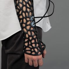 Osteoid Medical cast, attachable bone stimulator