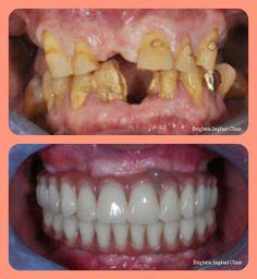Amazing full-mouth rehabilitation using dental-implants ...
