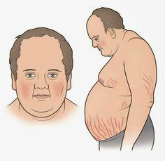 Αύξηση βάρους, διαβήτης, υπέρταση και εύκολη κόπωση ενδέχεται να συνδέονται με νόσο, σύνδρομο Cushing (Cushing's syndrome) ~ MEDLABNEWS.GR / IATRIKA NEA