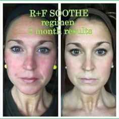 Soothe by Rodan and Fields. Calms, nourished, glowing skin. Let me help you with your skincare needs. https://krishajech.myrandf.com