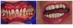 Apprezzi la perfezione? Il sorriso è il 60% della bellezza di un viso. Le faccette dentali del Dr Cannizzo  http://www.dentalarte.eu