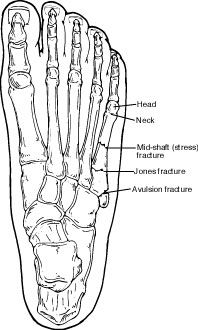 Fractures of the Fifth Metatarsal  Next in line to toe fractures, fifth metataral fractures are the most common fractures I treat in my practice. They are usually caused when one rolls off the outside edge of their foot. This usually happens from trauma falling off the edge of a curb or uneven surface and very commonly in women who wear wedges and platform shoe wear.  The good news is that with prompt nonsurgical treatment most patients recover within 6-8weeks.
