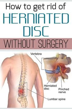 How to get rid of herniated disc without surgery - JustBeautyTips.net