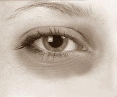 Top 10 Best Natural Treatments for Dark Circles | Under Eye Circles Treatments
