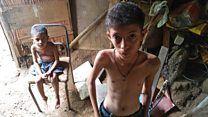 Exclusivo BBC Mundo: las impactantes imágenes que muestran el drama de la severa desnutrición infantil en Venezuela - BBC Mundo