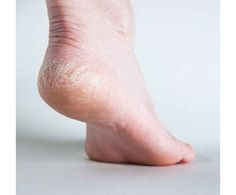 This simple homemade remedy will give you soft and smooth feet in the first wash, and for that you just need two ingredients that is Listerine and Vinegar. Listerine contains … Cracked Feet, Cracked Skin, Listerine, Dry Heels, Coconut Oil For Skin, Prevent Wrinkles, Feet Care, Skin Treatments, Dry Skin