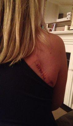 Melanoma surgery - November 15, 2012.
