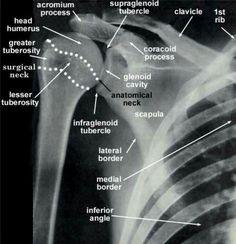Radiografia do ombro direito