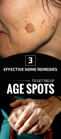 How to Get rid of Brown Spots on Face In a natural way Sun Spots On Skin, Black Spots On Face, Brown Spots On Hands, Age Spots On Face, Spots On Legs, Dark Spots, How To Get Rid, How To Remove, Spots On Forehead