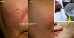 She Makes Her Pores Disappear With Only One Ingredient! I NEED To Try This!