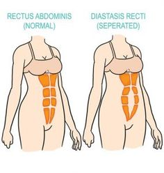 5-exercises-to-gradually-re-strengthen-your-core-after-giving-birth-diastasis-diagram
