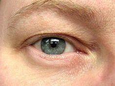 Home Remedies for Wrinkles under Eyes - Get Rid of Under Eye Wrinkles Naturally | How to Get Rid of Forehead Wrinkles #EyeCreams #SaltFaceScrub Under Eye Wrinkles, Prevent Wrinkles, Cream For Oily Skin, Skin Cream, Anti Aging Cream, Anti Aging Skin Care, Home Remedies For Wrinkles, Wrinkle Remedies, Pink