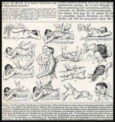 Medical Massage Illustration 1930s