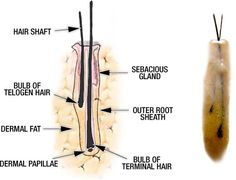 Hair transplant surgeries are an everyday practice. Looking into the process, one wonders how are the follicular units used in hair transplant surgery. Hair Transplant Surgery, Fue Hair Transplant, Hair Loss Cure, Hair Loss Remedies, Aesthetic Dermatology, Hair Restoration, Hair Transformation, Hair Growth, How To Stay Healthy