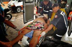 R a g news noticias : Acidente violento:Mulher tem braço decepado em acidente no Acre