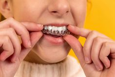 10 Fragen für Dein KFO-Wissen #Dr. Karen Meyer Grinding Teeth At Night, How To Clean Retainers, Dental Images, Invisible Braces, Clear Aligners, Oral Hygiene, Orthodontics, Dental Care, Dental Health